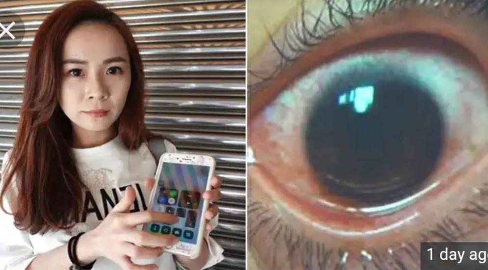 ایسے استعمال کرتی تھی موبائل، آنکھوں میں ہوگے 500 چھید