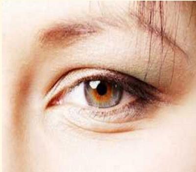 سردی میں کریں آنکھوں کی خاص حفاظت