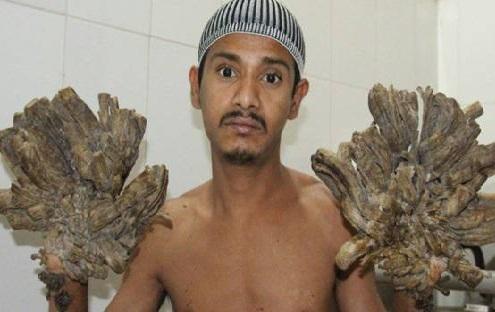 ہاتھوں میں اگتے ہیں پیڑ،25 سرجری کے بعد بھی کوئی بدلاؤ نہیں