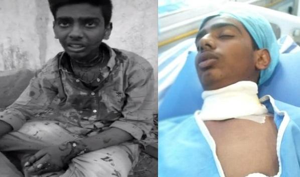انٹر طالب علم پر بلیڈ سے حملہ: ہاسپٹل میں شریک
