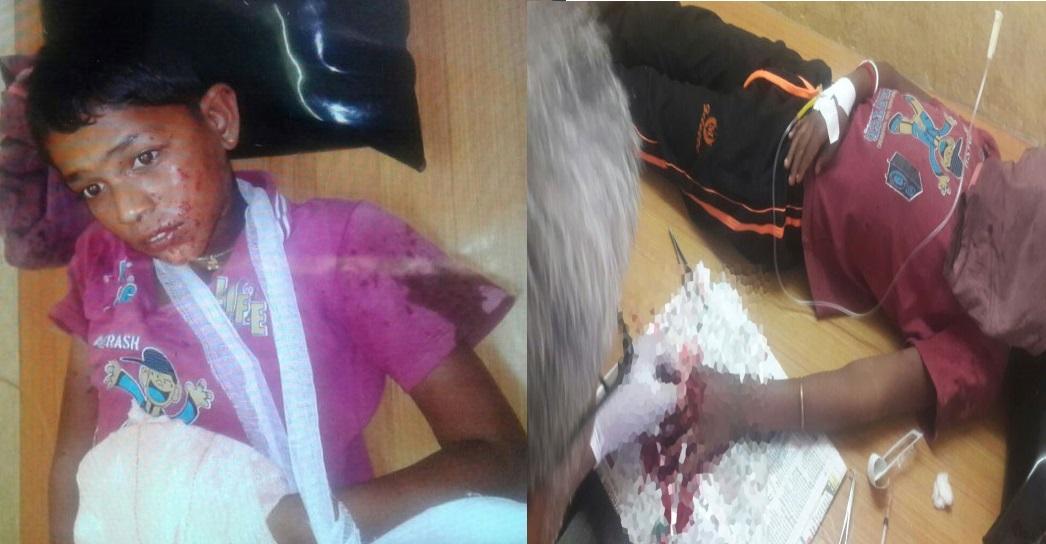مہاراشٹر: موبائل بیٹری میں دھماکہ : 10 سالہ بچے کی انگلیاں کاٹنی پڑی