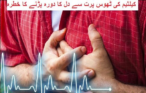 کیلثیم کی ٹھوس پرت سے دل کا دورہ پڑنے کا خطرہ زیادہ