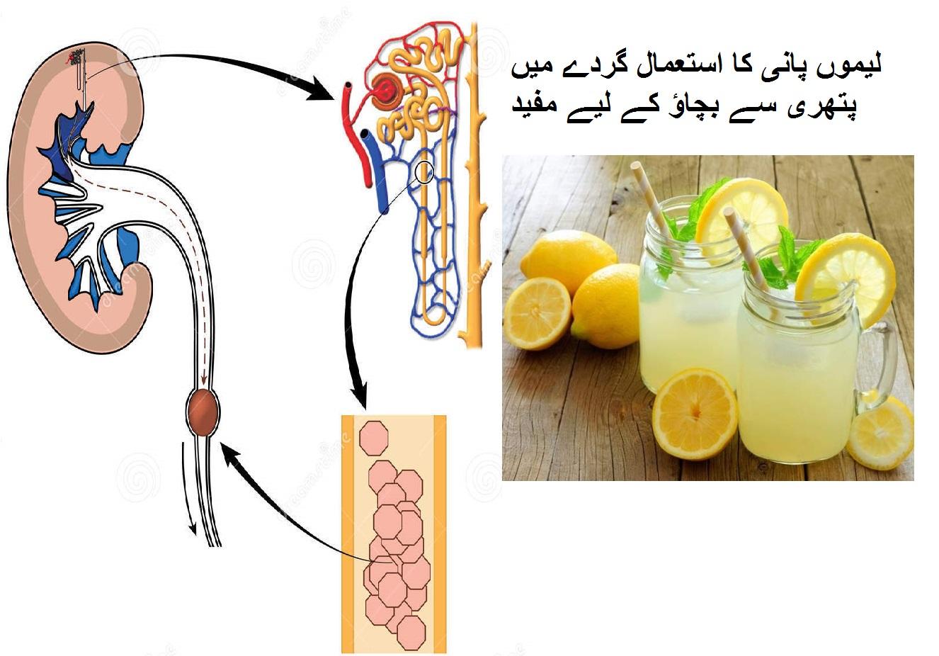 لیموں پانی کا استعمال گردے میں پتھری سے بچاؤ کے لیے مفید
