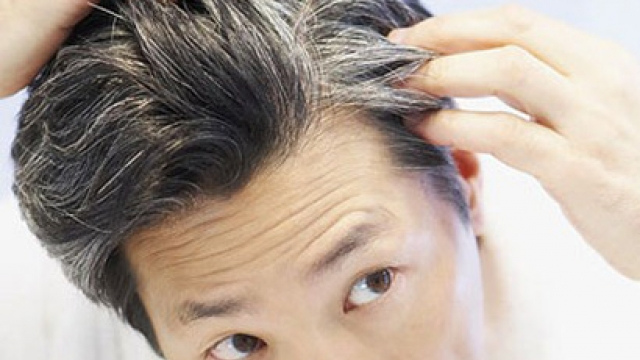 بالوں میں سفیدی کا بڑھنا امراض قلب کا خطرہ بڑھنے کا اشارہ