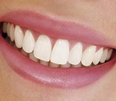 صحت مند ،صاف اور چمکتے دانتوں کیلئے چھوٹے چھوٹے نسخے