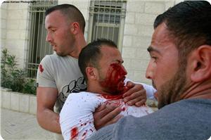 """"""" فلسطینی مظاہرین کی آنکھیں، چہرہ صہیونی فوج کا خاص نشانہ"""""""